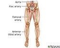 Arterial bypass leg - Series