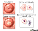 Cervical neoplasia