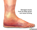 Ankle sprain swelling