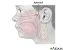 Adenoid removal - Series