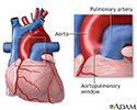 Aortopulmonary window