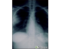 Aspergillosis - chest X-ray