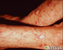 Actinic keratosis on the forearms