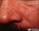 Dermatitis seborrheic - close-up