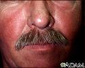 Systemic lupus erythematosus rash on the face