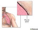 Chest tube insertion - series