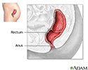 Rectal prolapse repair  - series