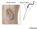 Adrenal gland biopsy