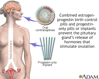 Hormone-based contraceptives