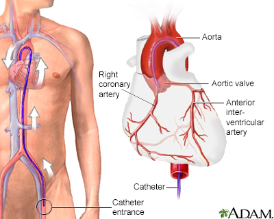 Cardiac arteriogram