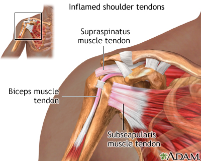 Inflamed shoulder tendons