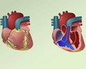 Congenital heart defect overview