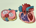 Valvular heart disease (VHD) overview